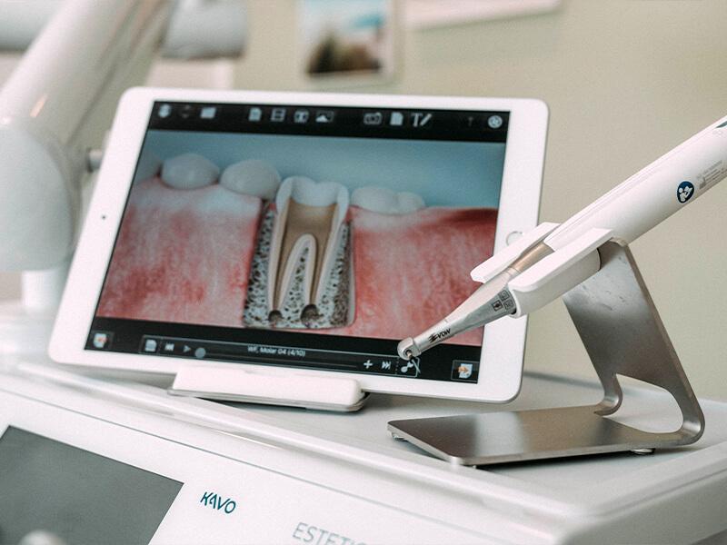 Dentalnord Wurzelkanalbehandlung Visualisierung